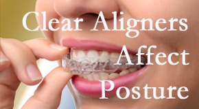 Clear aligners influence posture which Pensacola chiropractic helps.