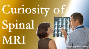 Pensacola MRIs for spinal stenosis may be revealing…or confusing.