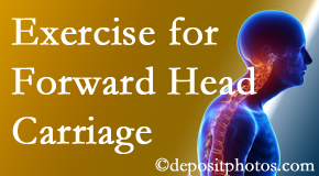 Pensacola chiropractic treatment of forward head carriage is two-fold: manipulation and exercise.