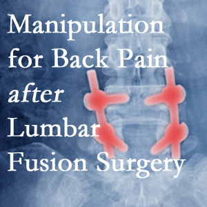 Pensacola chiropractic spinal manipulation helps post-surgical continued back pain patients discover relief of their pain despite fusion.