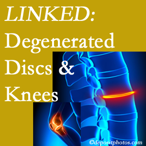 Degenerated discs and degenerated knees are not such unlikely companions. They are seen to be related. Pensacola patients with a loss of disc height due to disc degeneration often also have knee pain related to degeneration.