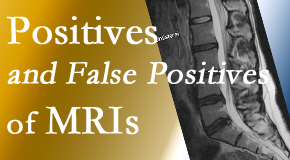 Pensacola Spinal Rehab Center carefully chooses when and if MRI images are needed to guide the Pensacola chiropractic treatment plan.