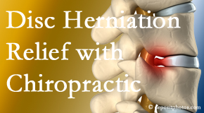Pensacola Spinal Rehab Center gently treats the disc herniation causing back pain.